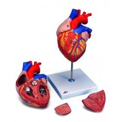 Serce z bajpasem, 4 części, powiększenie 2x